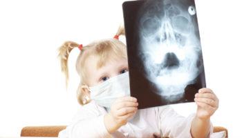 Разбор мифов и фактов о вреде рентгена для детей